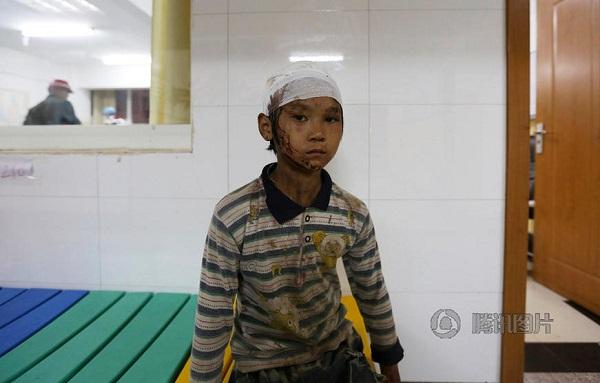 地震中受伤的儿童
